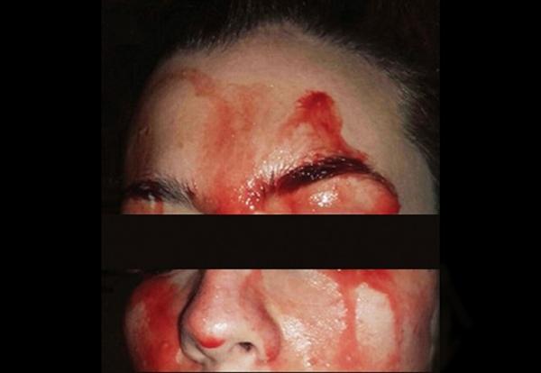 画面吓人:21岁女子患古怪病 汗液跟血液同色