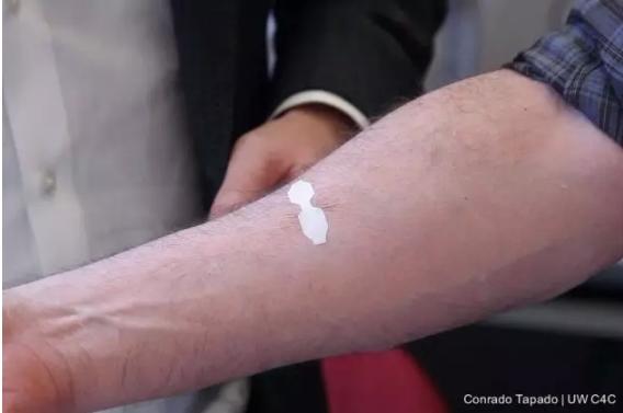 """全新""""创可贴""""取代缝线 伤口愈合速度快3倍"""