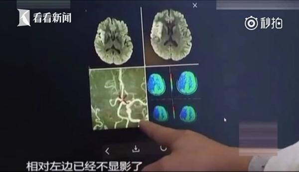 河南女孩火车上连玩20小时手机:脑梗塞命悬一线