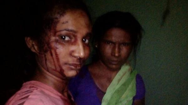 印度年轻女子暴走击退老虎 最先做的事竟是自拍