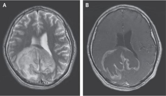 惊人病例:一男子脑内感染的寄生虫长成大肿块