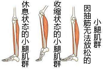 痛到懷疑人生!小腿抽筋 到底是因為缺鈣還是要長個?