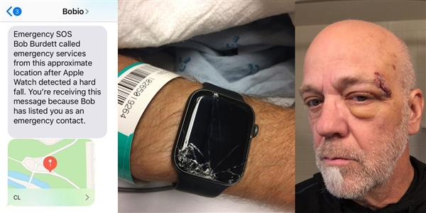 苹果Apple Watch跌倒检测再次立功:救下骑山地车老人