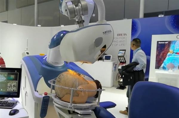 """发际线有救了!进博会上植发机器人现场""""做手术"""""""