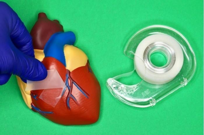 科学家研发出超黏胶带:能直接粘合受损内脏器官