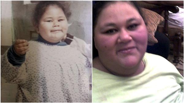 體重1000斤!世界最胖女子去世:床上躺瞭25年