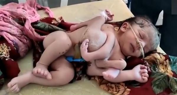 印度女子怀三胞胎:两女婴连体 四只手三只脚